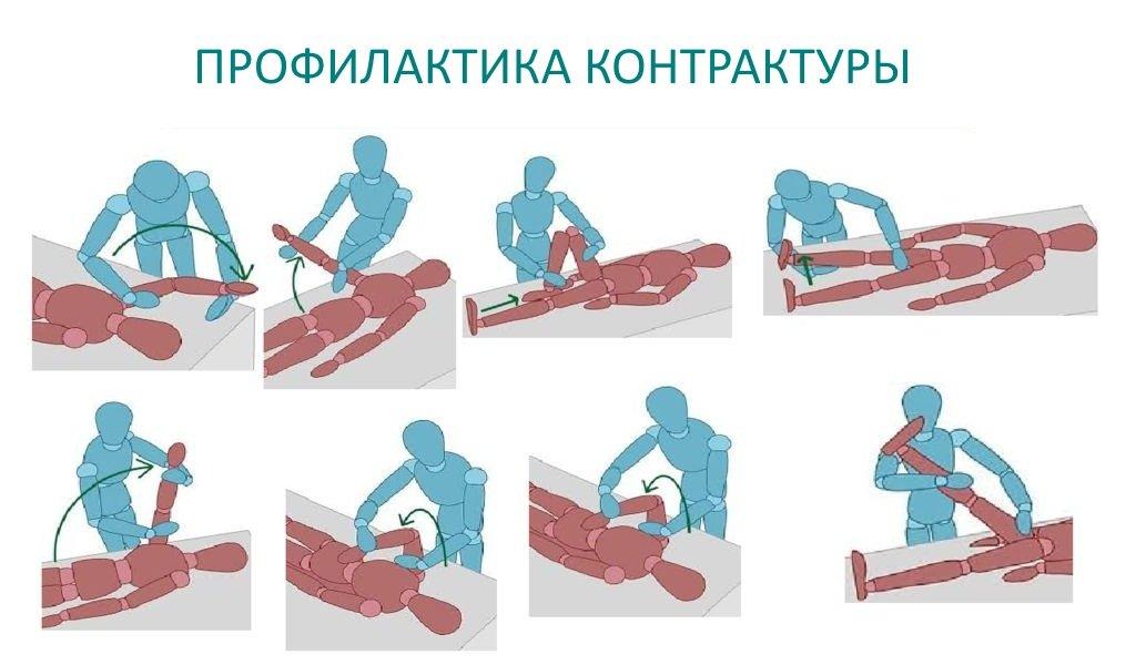 Применение процедур у пациентов при болезненном разрабатывании контрактур рук